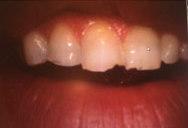 Grinding teeth Bellevue WA